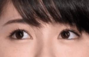hamabeminami_seikei_13_2