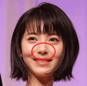 hamabeminami_seikei_16
