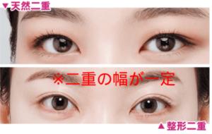 seikei_futae